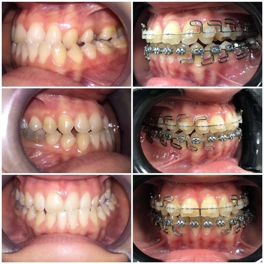 шатаются зубы после брекетов