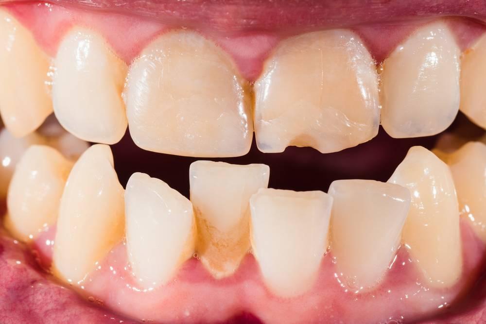 Кривые молочные зубы. кто сталкивался?