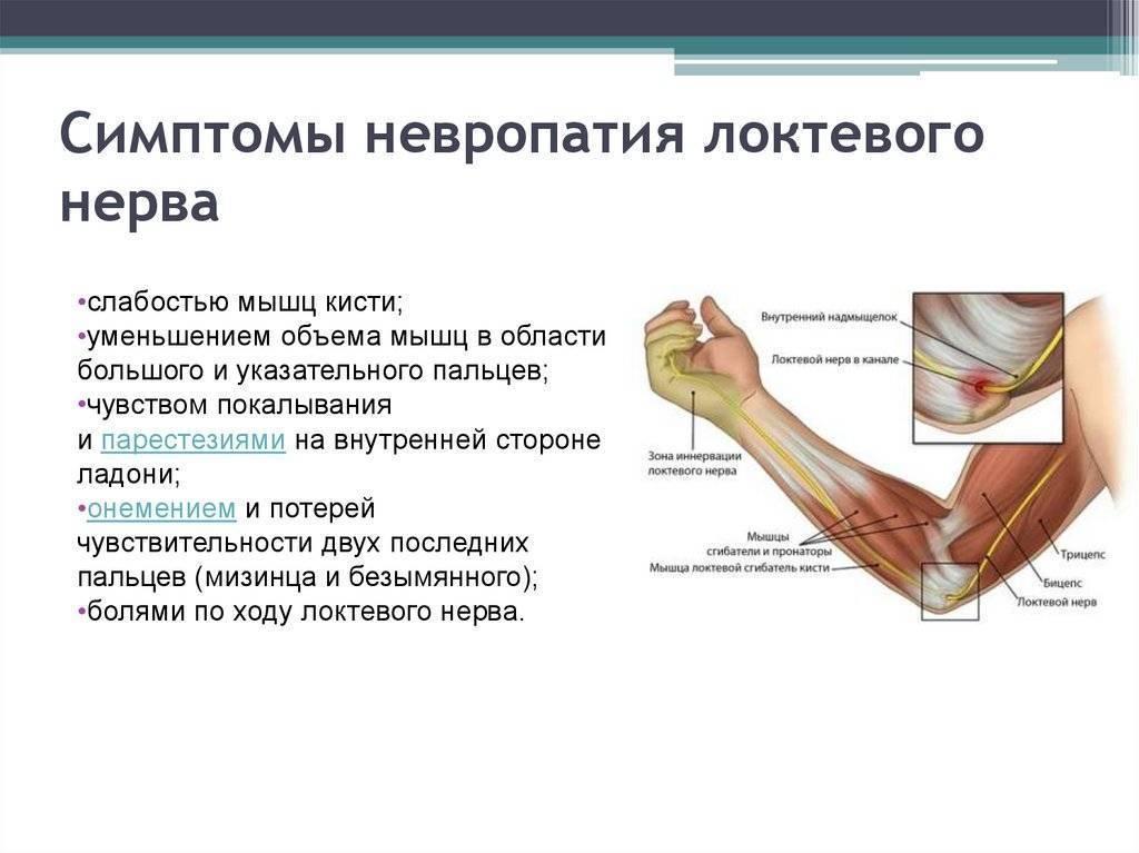 Невропатия локтевого нерва: причины заболевания, основные симптомы, лечение и профилактика