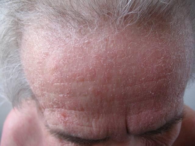 заразен ли себорейный дерматит