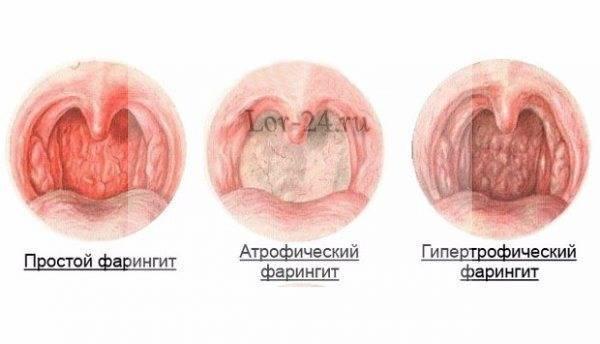 катаральный фарингит симптомы и лечение у взрослых