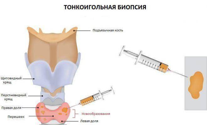Биопсия щитовидной железы - что это, как проводится? | здрав-лаб