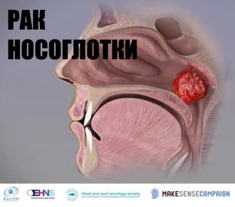 можно ли вылечить рак носоглотки 2 стадия