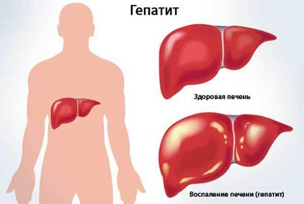 температура при болезни печени
