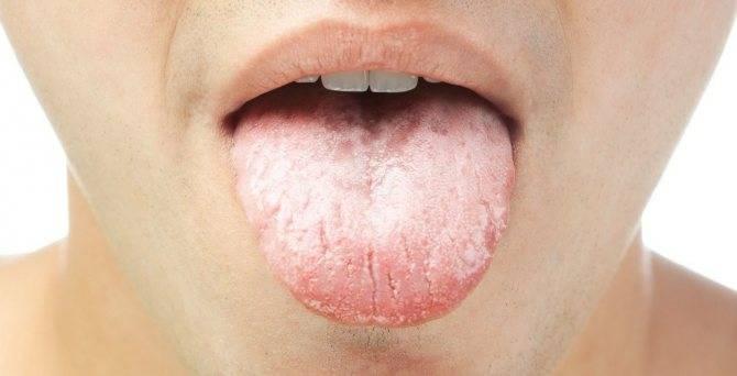 Признаки и лечение кандидоза в горле и гортани