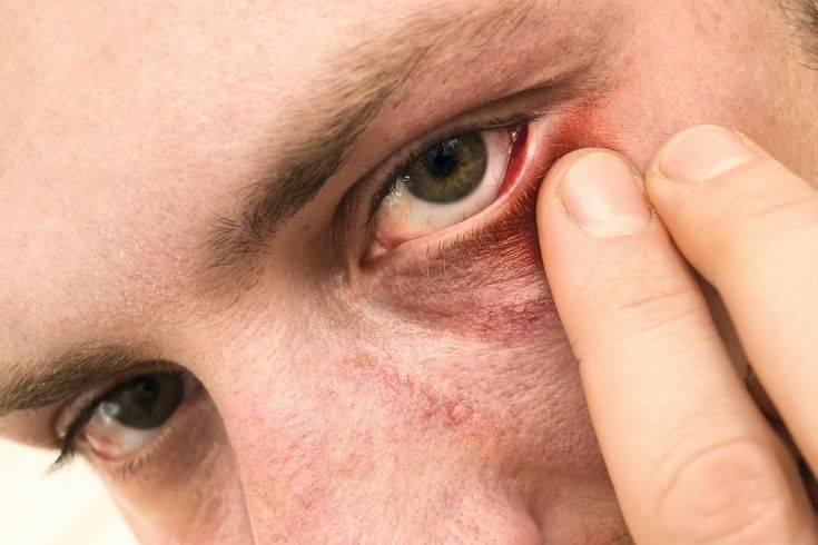 Начался конъюнктивит? лечение бактериальной и вирусной инфекции глаз