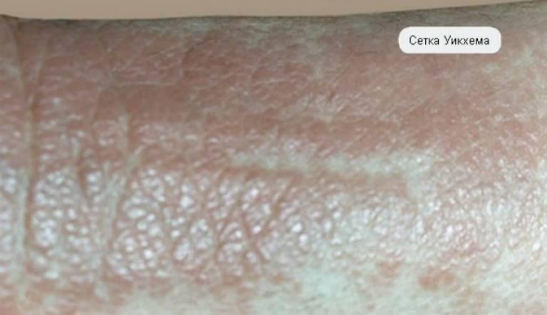Почему появляется и как лечить псориаз на гениталиях у женщин?