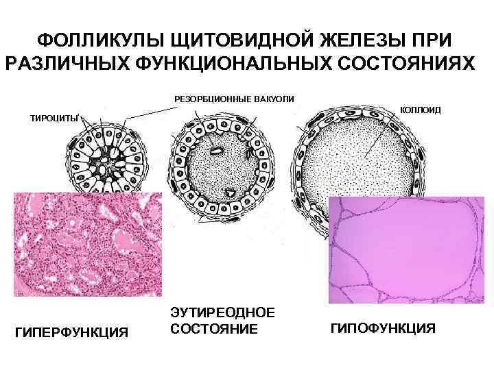 Узлы щитовидной железы у детей