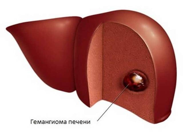 Диета при гемангиоме печени у взрослых - лечение печени