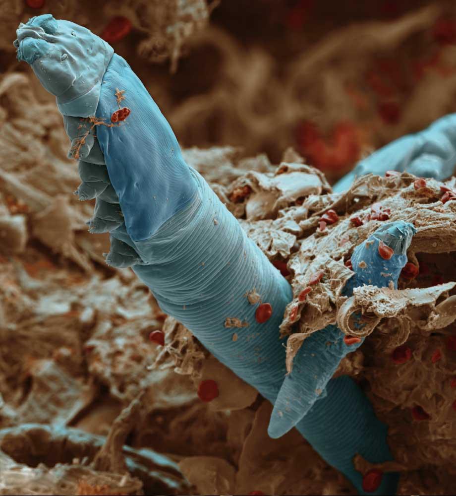 подкожные паразиты у человека