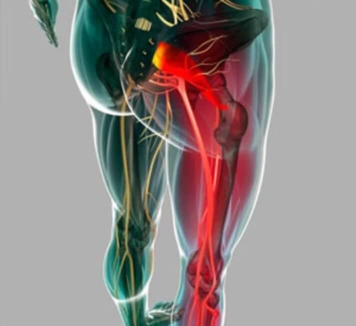 Топ эффективных средств для медикаментозного лечения симптомов воспаления седалищного нерва