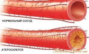 Холестериновые бляшки на веках: что это и как от них избавиться