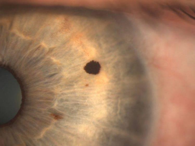 Чёрные точки в глазах