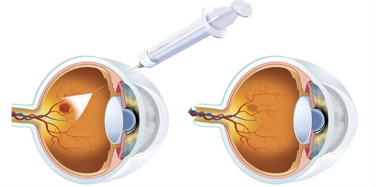 макулодистрофия сетчатки глаза причины