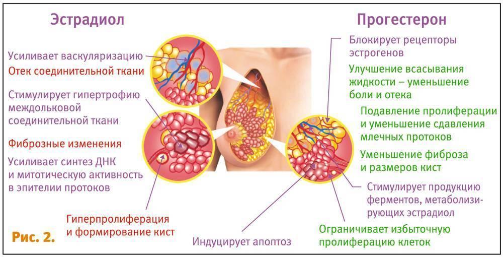 Масталгия молочной железы (циклическая и ациклическая): причины, симптомы и лечение препаратами и народными средствами