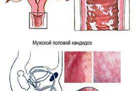 Взаимосвязь герпеса и рака
