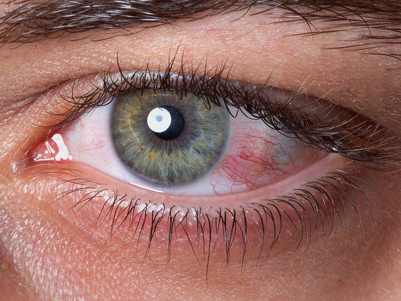 красные глаза от линз что делать