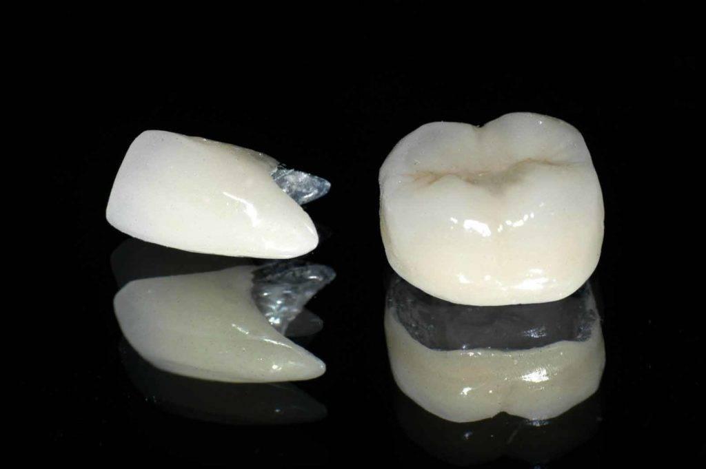 Коронки на передние зубы — какие лучше поставить, цены, фото