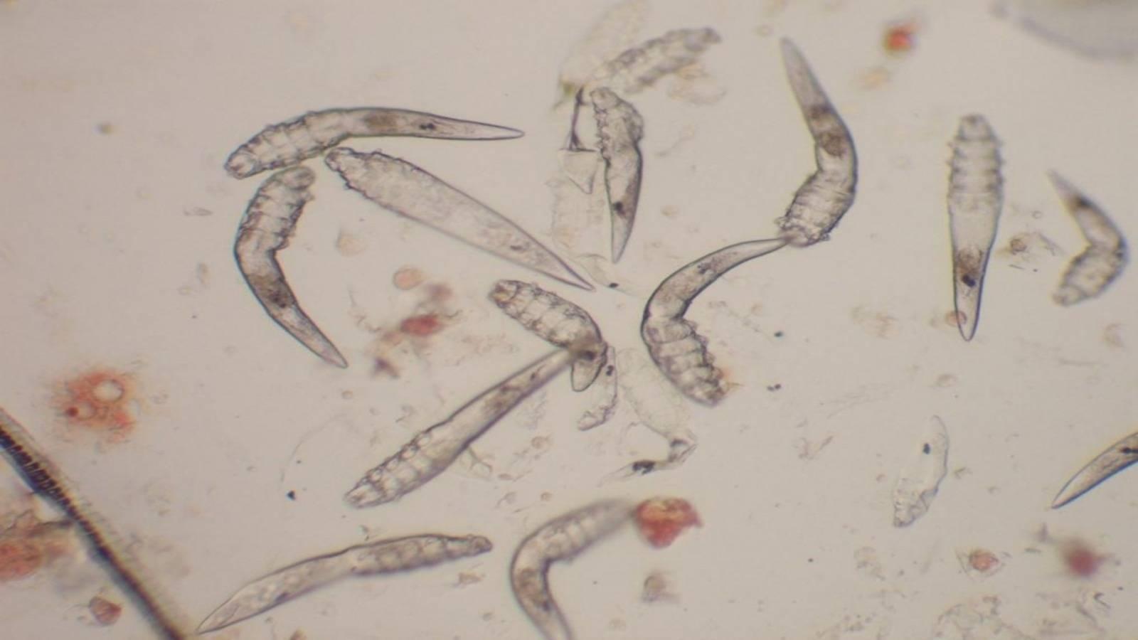 паразиты в организме человека симптомы на коже