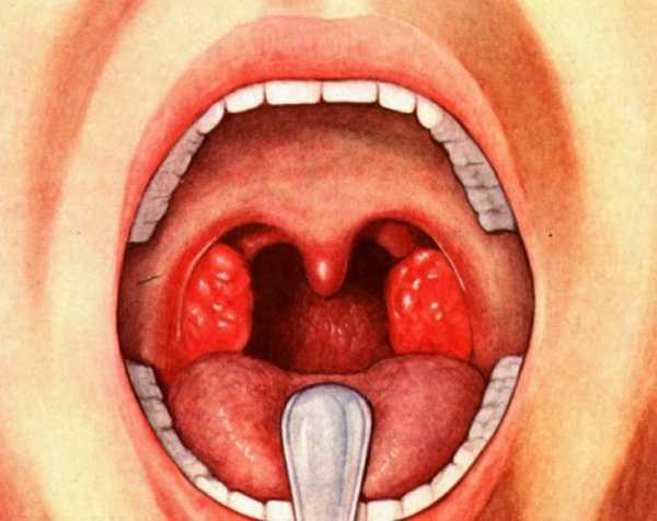 Симптомы и лечение стрептококковой ангины
