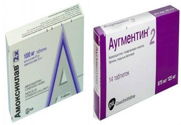 лечение синусита без антибиотиков
