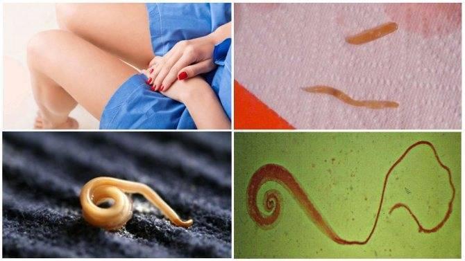 Глисты в матке симптомы и лечение. глисты во влагалище