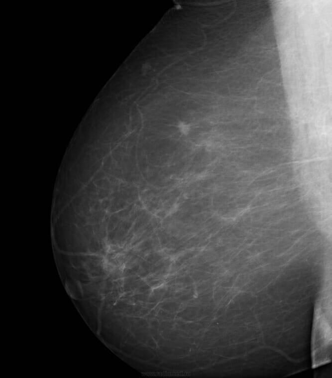 Увеличен лимфоузел под мышкой мастопатия