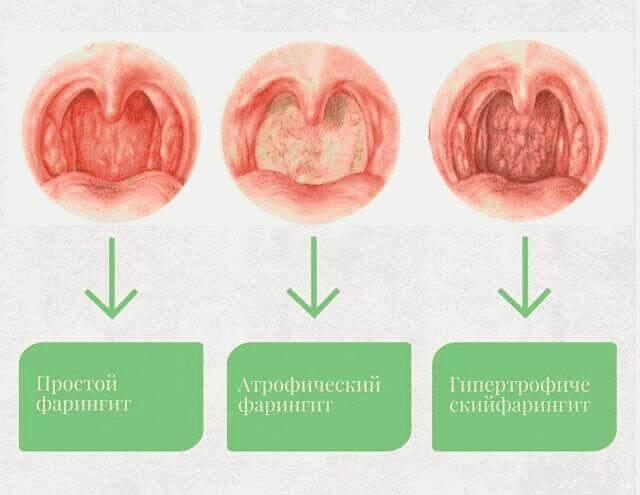 Фарингит атрофический: симптомы и лечение симптомы и лечение у взрослых и детей