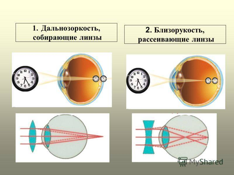 Правила подбора и использования линз при близорукости