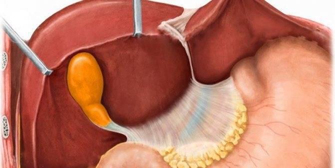 От чего возникает загиб желчного пузыря у ребенка – лечение
