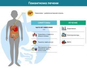 Гемангиома печени: лечение