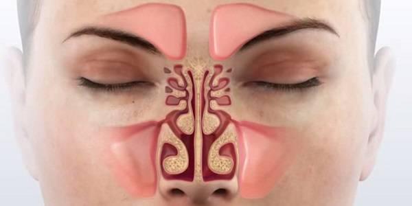 лечение аллергического гайморита