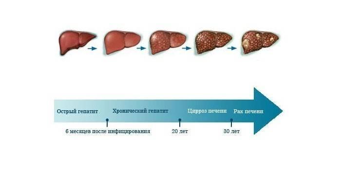 Восстановление печень после гепатита