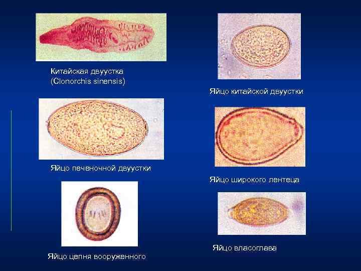 Симптомы и лечение клонорхоза