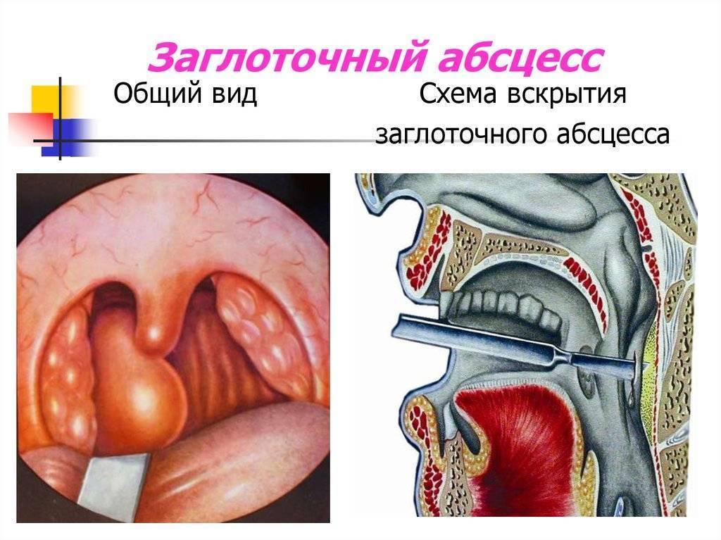 заглоточный абсцесс симптомы