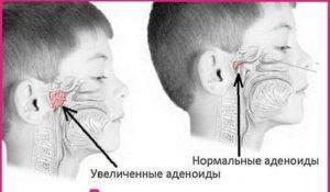 Храп после удаления аденоидов - запись пользователя анна тихомирова (id2614025) в сообществе живем по-комаровскому в категории сон - babyblog.ru
