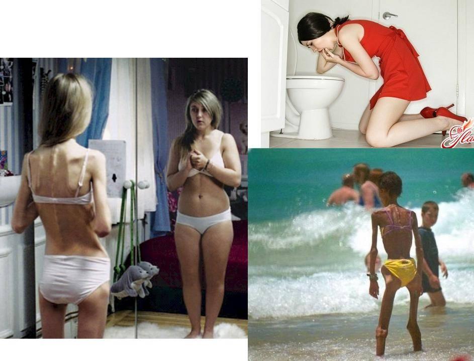 диеты для анорексии