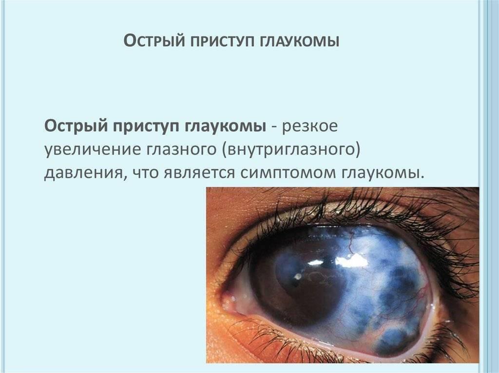 лечение острого приступа глаукомы