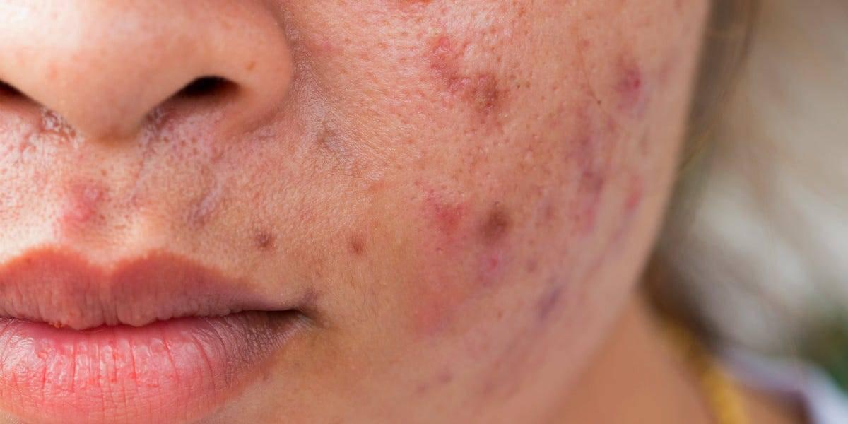 Стафилококк дерматит:  популярные вопросы и ответы на них