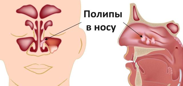 полип в носу как лечить