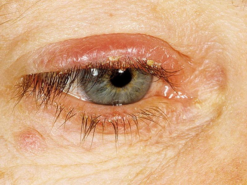 Чешуйчатый блефарит: симптомы и лечение