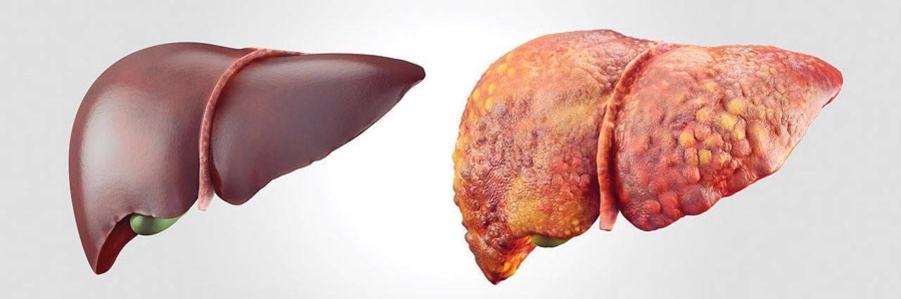 Как восстановить печень после лечение гепатита с