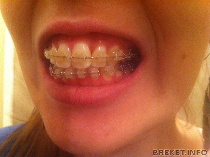 можно ли ставить брекеты если нет зуба