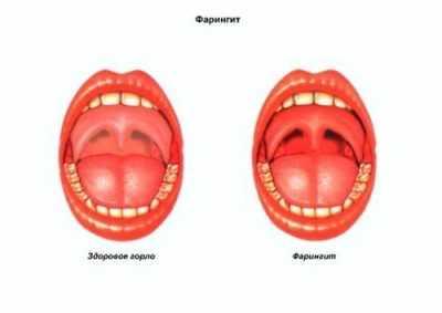 Roto-virusnaya-infekciya-lechenie - запись пользователя натали (step-by-step13) в сообществе здоровье - от трех до шести лет в категории вирусные инфекции - babyblog.ru