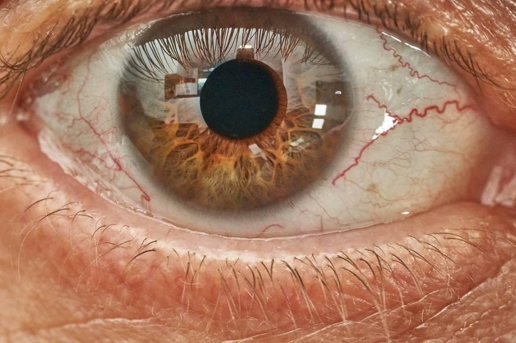 Признаки и особенности лечения рака глаза
