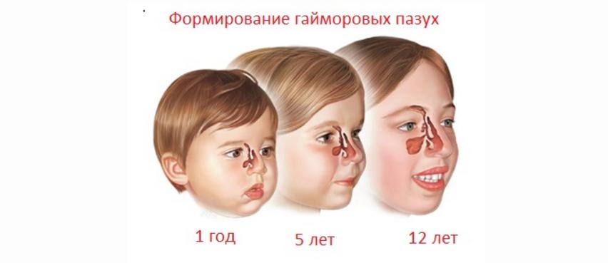 Признаки гайморита у детей, его симптомы и лечение