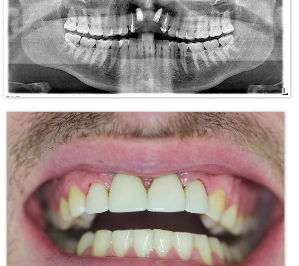 Как выровнять зубы без брекетов в домашних условиях?