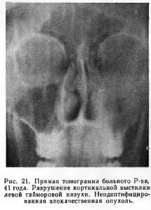 Рак гайморовой пазухи - симптомы болезни, профилактика и лечение рака гайморовой пазухи, причины заболевания и его диагностика на eurolab