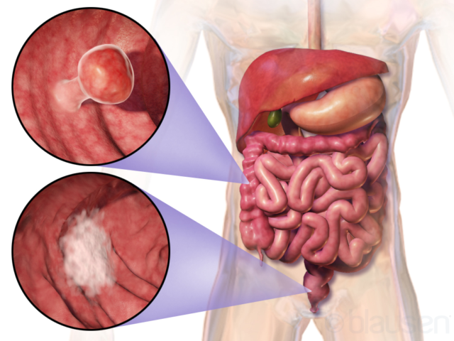 Как отличить геморрой от рака прямой кишки?
