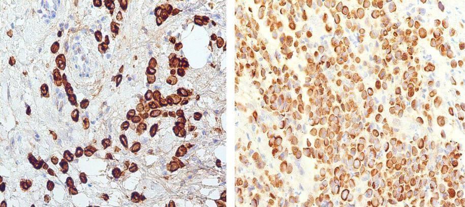 Виды, причины возникновения, симптомы, стадии, диагностика и лечение инвазивного рака молочной железы